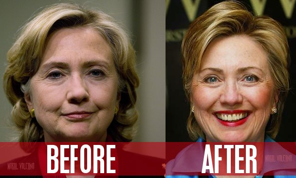 Hillary Clinton before and after surgery.
