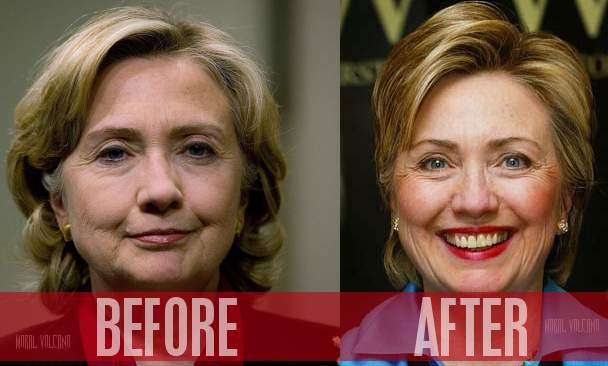 Hillary Clinton before and after possible plastic surgery.
